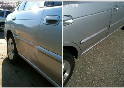 Dent Before and After